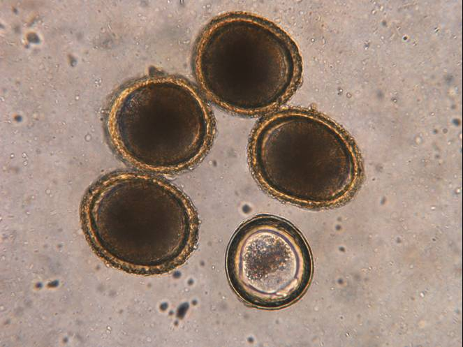 Roundworm eggs
